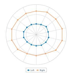 Rear wheel under radial load